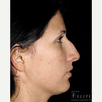 25-34 year old woman treated with Rhinoplasty before 3413919