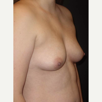 18-24 year old woman treated with Breast Augmentation before 3458262
