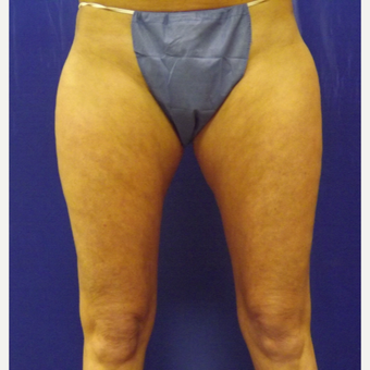 47 year old woman treated with SculpSure Non-Surgical Body Contouring after 2706305