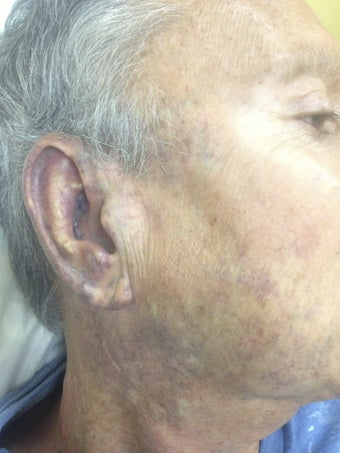 62 yo male with hemangioma face. after 1002654