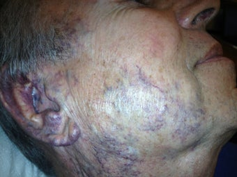 62 yo male with hemangioma face. before 1002654