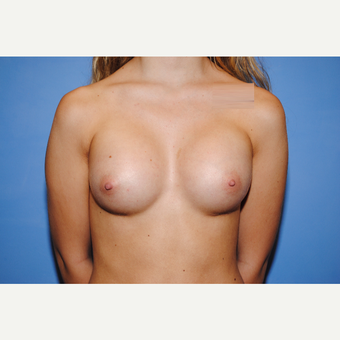 25-34 year old woman treated with Breast Augmentation after 3763007