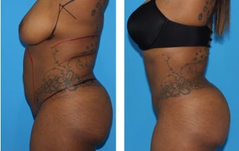 18-24 year old woman treated with Smart Lipo after 2773890
