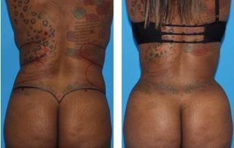 18-24 year old woman treated with Smart Lipo before 2773890