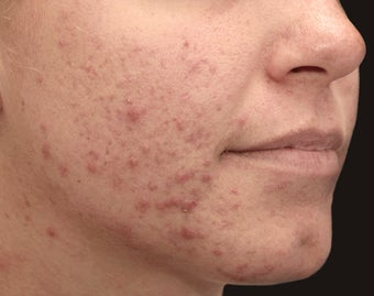 Isolaz and Photodynamic Therapy for Acne before 1357261