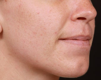 Isolaz and Photodynamic Therapy for Acne after 1357261