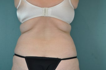 CoolSculpting Treatment to Bra Fat Region before 1471077