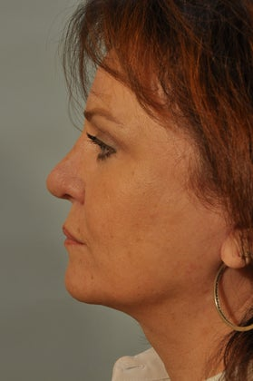Revision Rhinoplasty after 886689