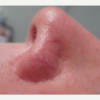 35-44 year old woman treated with IPL for facial blood vessels