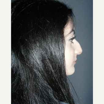 18-24 year old woman treated with Rhinoplasty before 3692006