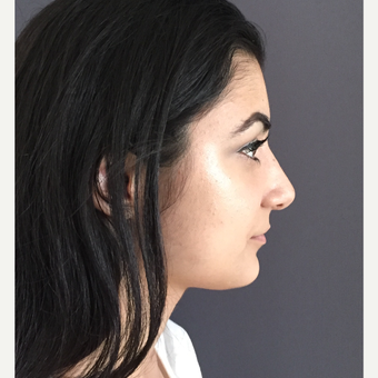 18-24 year old woman treated with Rhinoplasty after 3692006