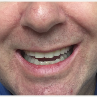 45-54 year old man treated with Invisalign after 3638299