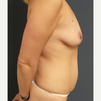35-44 year old woman treated with Breast Augmentation and tummy tuck before 3379728