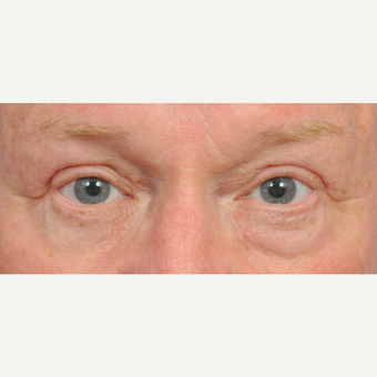 65-74 year old woman treated with Eyelid Surgery after 3441043