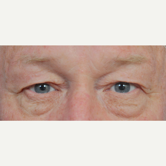 65-74 year old woman treated with Eyelid Surgery before 3441043