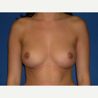 18-24 year old woman treated with Breast Augmentation before 3009230
