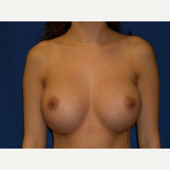 18-24 year old woman treated with Breast Augmentation after 3009230