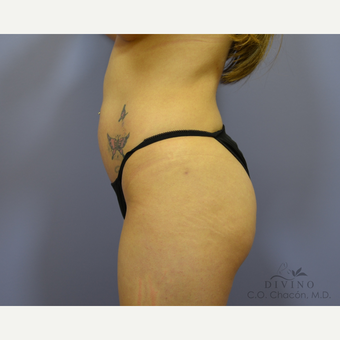 25-34 year old woman treated with Liposuction before 3421400