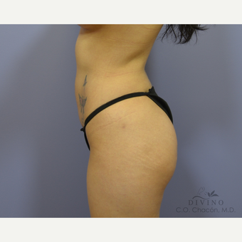 25-34 year old woman treated with Liposuction after 3421400