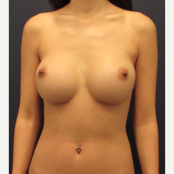 25-34 year old woman treated with Breast Implant Revision before 3287378