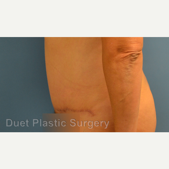 35-44 year old woman treated with Tummy Tuck after 3368121