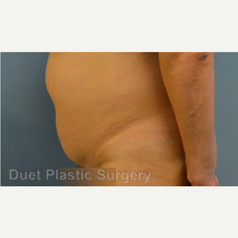 35-44 year old woman treated with Tummy Tuck before 3368121