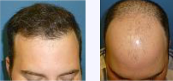 25-34 year old man treated with Hair Transplant before 3718371