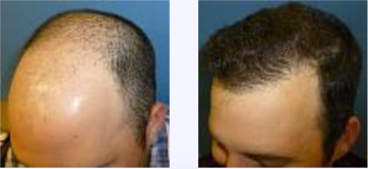25-34 year old man treated with Hair Transplant after 3718371