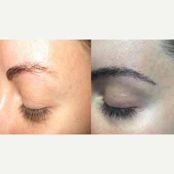 25-34 year old woman Eyebrow Transplantation before 2122703