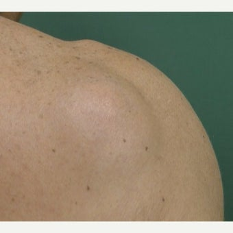 55-64 year old woman treated with Lipoma Removal before 1967211