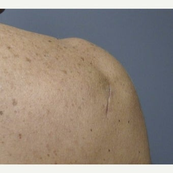 55-64 year old woman treated with Lipoma Removal after 1967211
