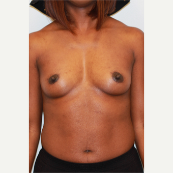 25-34 year old woman treated with Breast Augmentation before 3027162