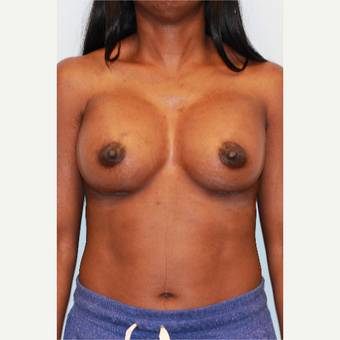 25-34 year old woman treated with Breast Augmentation after 3027162