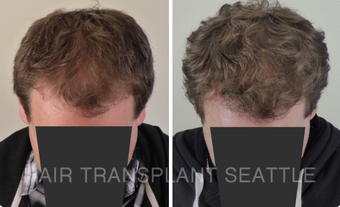 45-54 year old man treated with Hair Transplant after 2990003