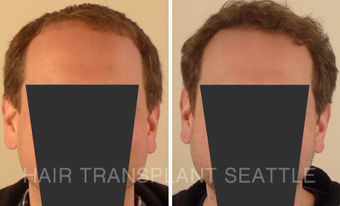 45-54 year old man treated with Hair Transplant before 2990003