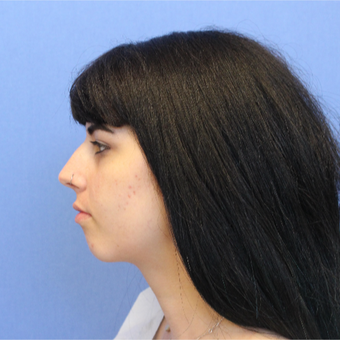 18-24 year old woman treated with Rhinoplasty before 3377810