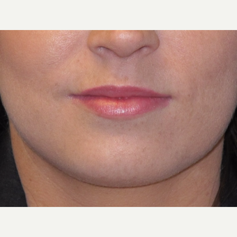 18-24 year old woman treated with Lip Augmentation after 3502361