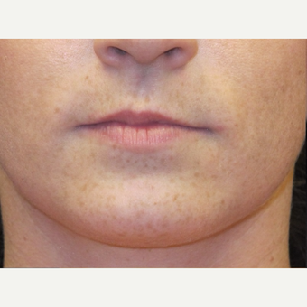 18-24 year old woman treated with Lip Augmentation before 3502361