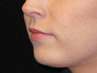 18-24 year old woman treated with Lip Augmentation 3502361