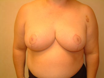 This patient is a 58 year old woman came in for a Breast Reduction after 960298