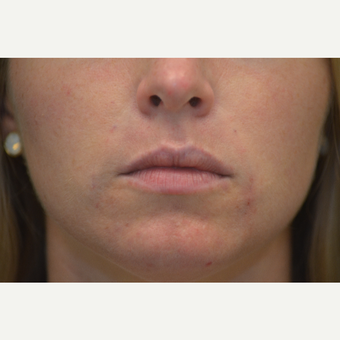 31- year old female - Juvederm in nasal labial folds after 3748978