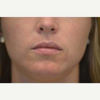 31- year old female - Juvederm in nasal labial folds before 3748978