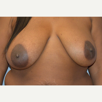 35-44 year old woman treated with Breast Lift before 3161453