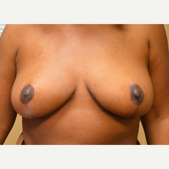 35-44 year old woman treated with Breast Lift after 3161453