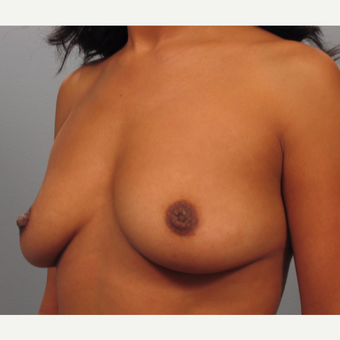 35-44 year old woman treated with Breast Augmentation before 3493272