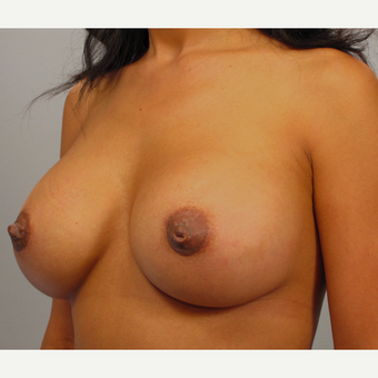 35-44 year old woman treated with Breast Augmentation after 3493272