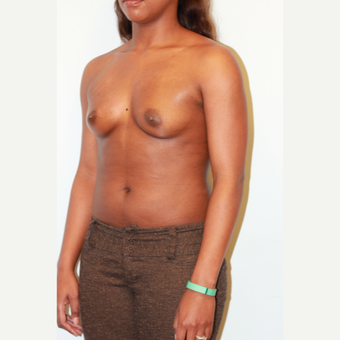 25-34 year old woman treated with Breast Augmentation before 3026849