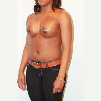 25-34 year old woman treated with Breast Augmentation after 3026849