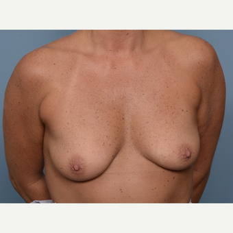 25-34 year old woman treated with Breast Implants before 3848740