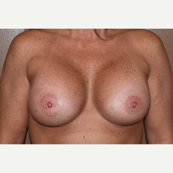 25-34 year old woman treated with Breast Implants after 3848740